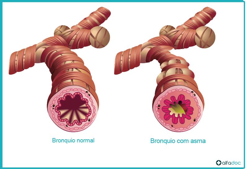 Bronquio-com-asma
